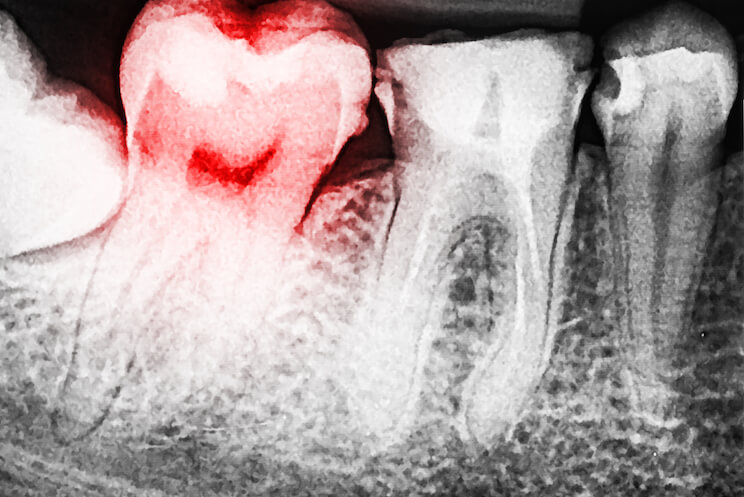 tooth-decay-2.jpg